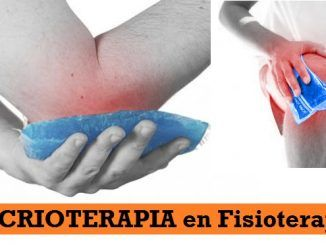 Crioterapia en Fisioterapia