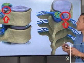 Hernia Discal comprimiendo nervio