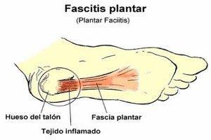 la fascitis plantar 300x200 Fascitis Plantar ¿Qué es? y Ejercicios para Evitar el Dolor