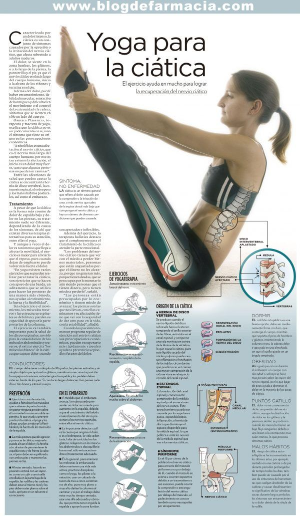 Yoga para Aliviar Dolor de Ciática