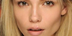 paralisis facial 300x150 Qué es la parálisis facial y por qué se da