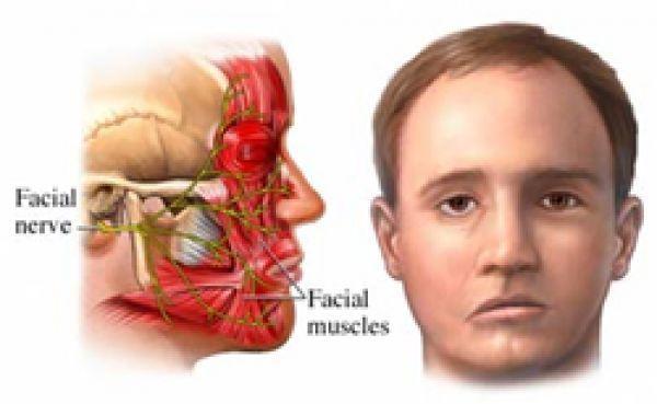 nervio paralisis facial