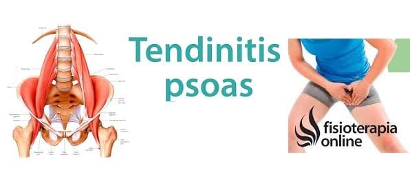 Tendinitis del Músculo iliopsoas y el dolor pélvico | Fisioterapia ...