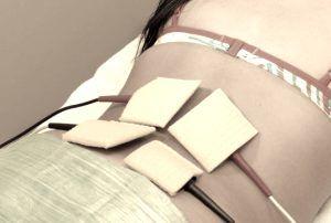 Tratamientos no quirúrgicos para aliviar el dolor de la ciática