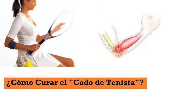 ¿Cómo curar el codo de tenista o epicondilitis?