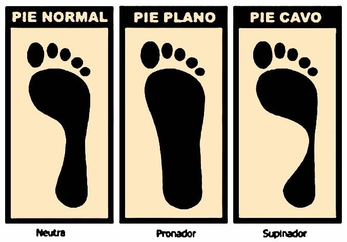 Tipos de pie