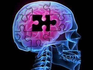 Cómo Estimular la Mente de un Enfermo de Alzheimer