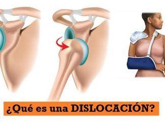 ¿Que es una Dislocación o Luxación?