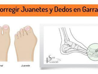 Corregir Juanetes y Dedos en Garra