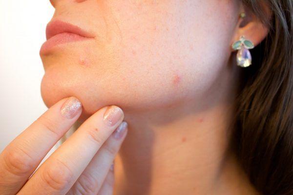 mejorar la rosacea de la cara