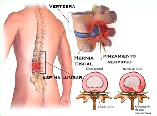 Que es una hernia discal